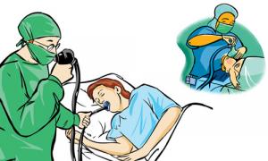 Sleep Endoscopy